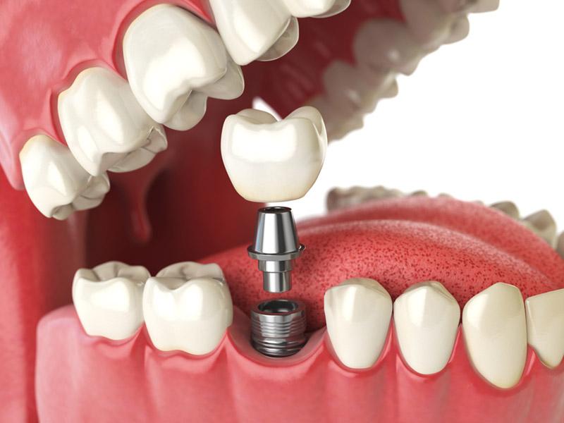 dental implants in okotoks
