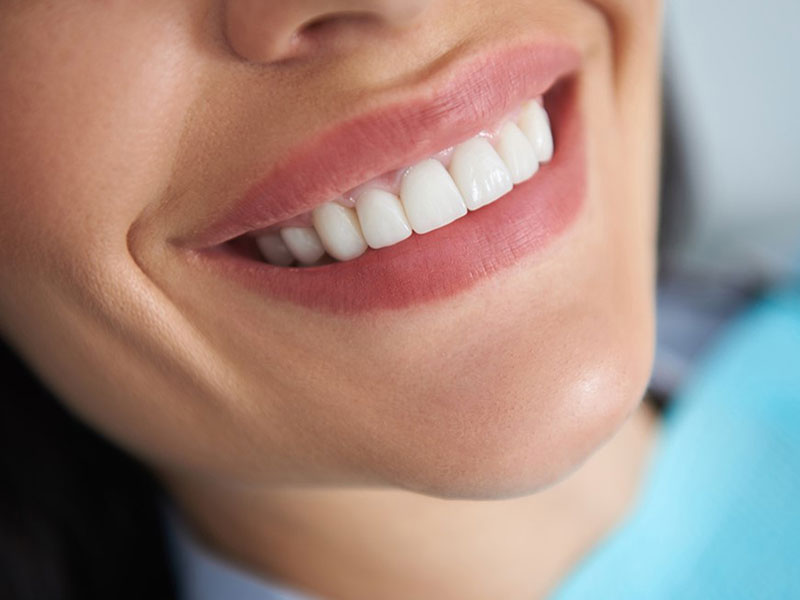 gum and tooth contouring in okotoks