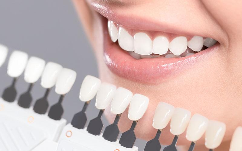 teeth whitening in okotoks